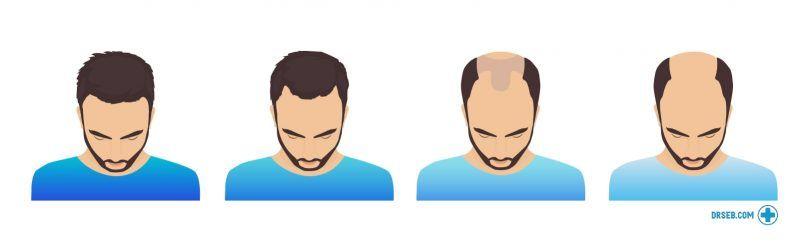 informerande bild om håravfall. fyra stadier av manligt håravfall, från mild håravfall till skallighet.