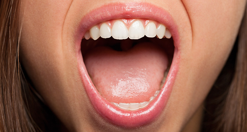 Close-up of a woman with mouth open suffering from oral thrush