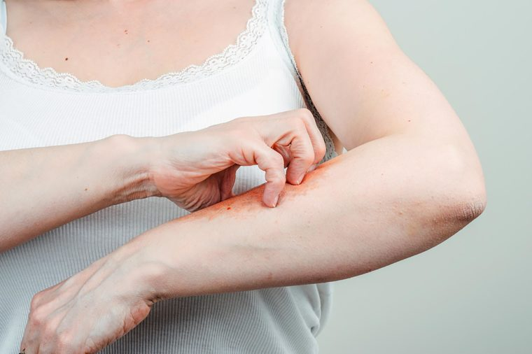 A light-skinned woman in a white top scratching her skin affected by psoriasis