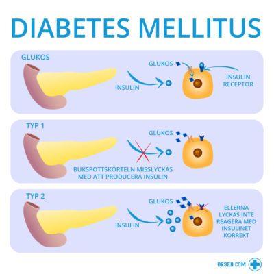 symtom på diabetes 2