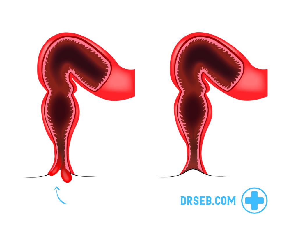 hva er hemoroider